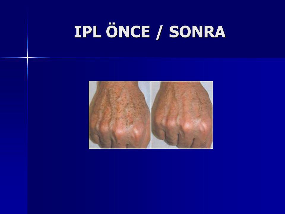 IPL ÖNCE / SONRA