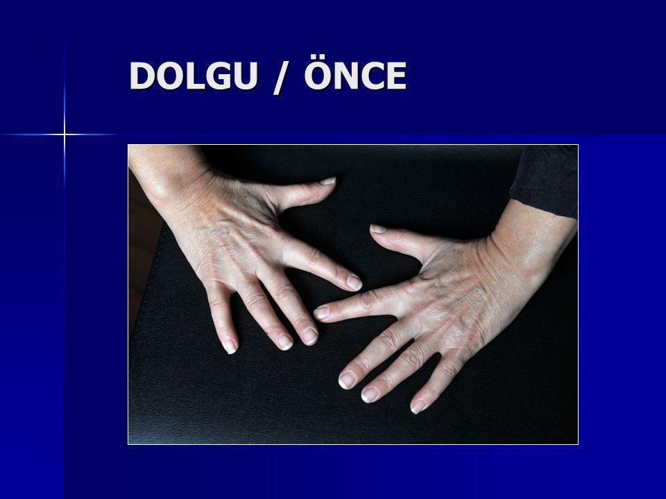 DOLGU / ÖNCE