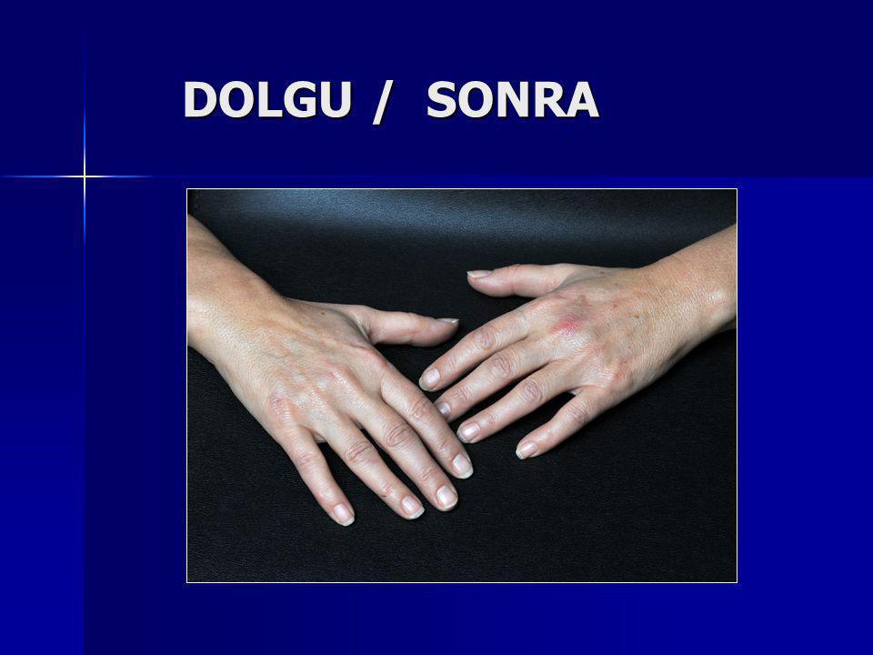 DOLGU / SONRA