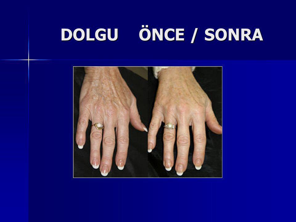 DOLGU ÖNCE / SONRA