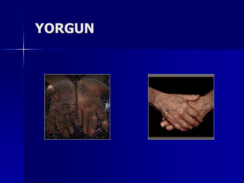 YORGUN
