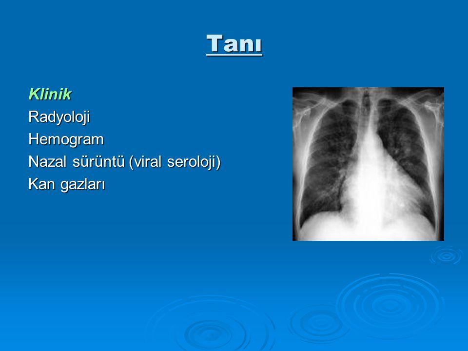 Tanı Klinik Radyoloji Hemogram Nazal sürüntü (viral seroloji)