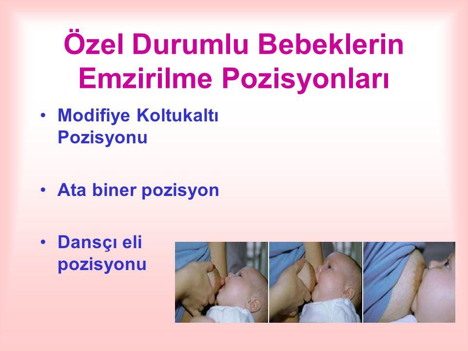 Özel Durumlu Bebeklerin Emzirilme Pozisyonları