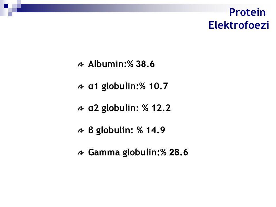 Protein Elektrofoezi Albumin:% 38.6 α1 globulin:% 10.7