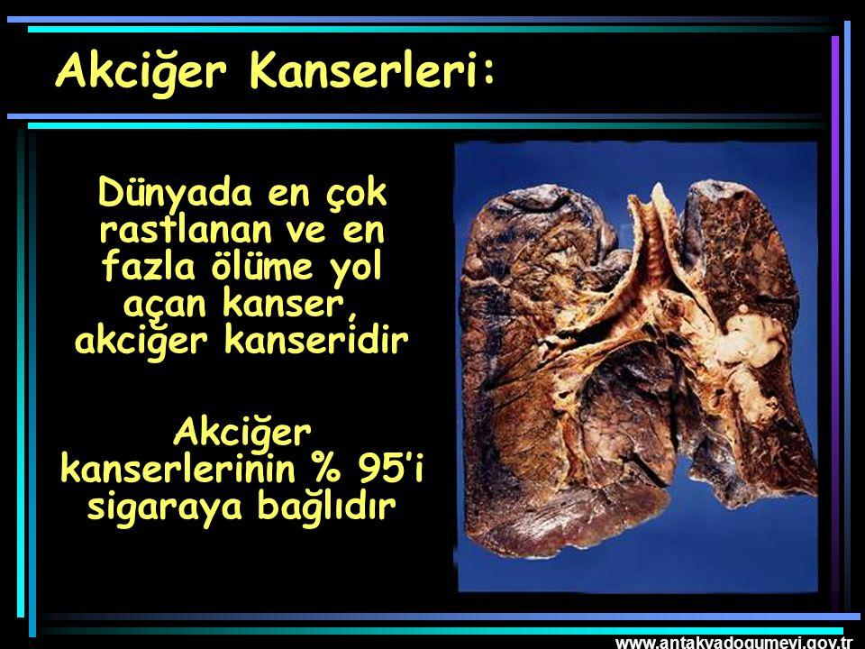 Akciğer kanserlerinin % 95'i sigaraya bağlıdır