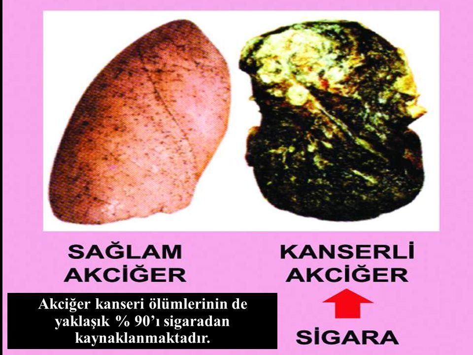 Akciğer kanseri ölümlerinin de yaklaşık % 90'ı sigaradan kaynaklanmaktadır.
