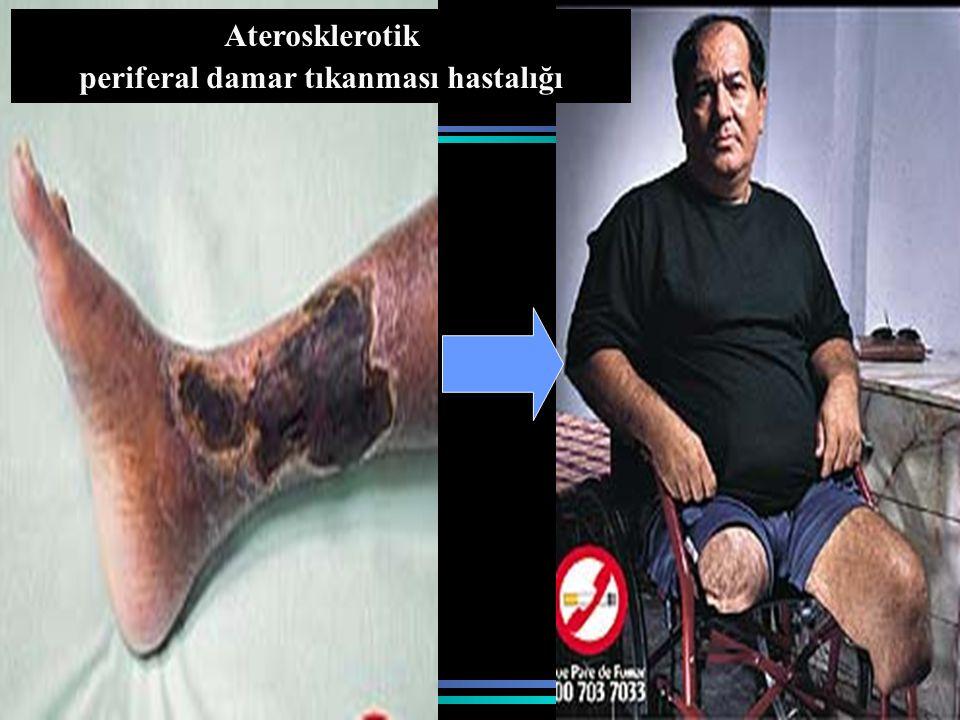 periferal damar tıkanması hastalığı