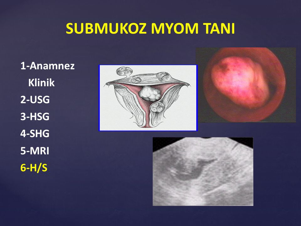 SUBMUKOZ MYOM TANI 1-Anamnez Klinik 2-USG 3-HSG 4-SHG 5-MRI 6-H/S