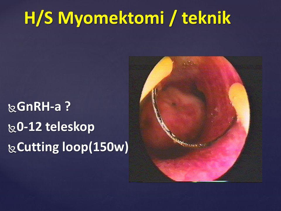 H/S Myomektomi / teknik