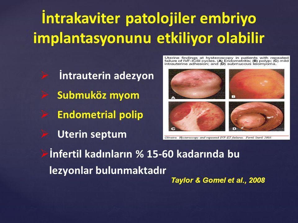 İntrakaviter patolojiler embriyo implantasyonunu etkiliyor olabilir
