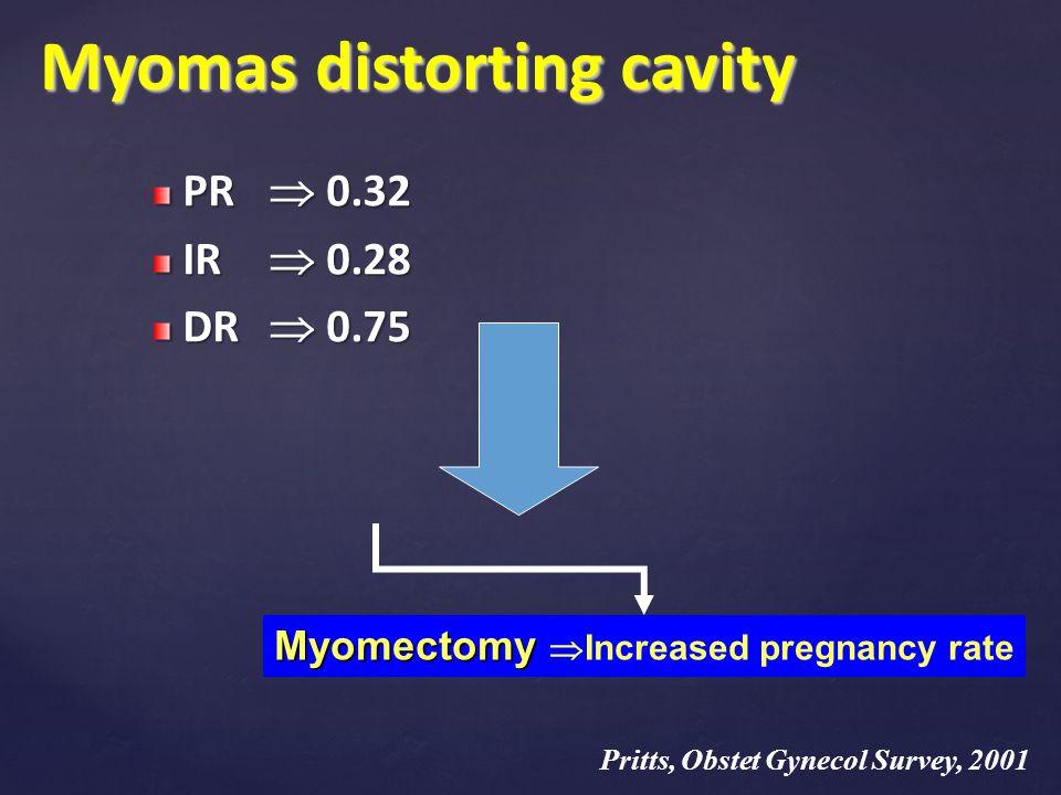 Myomas distorting cavity