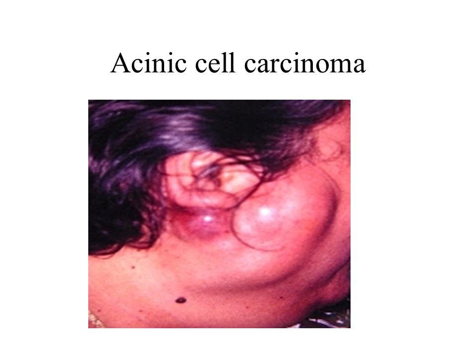 Acinic cell carcinoma