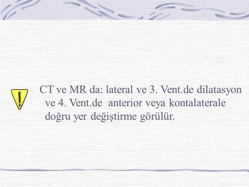 CT ve MR da: lateral ve 3. Vent.de dilatasyon