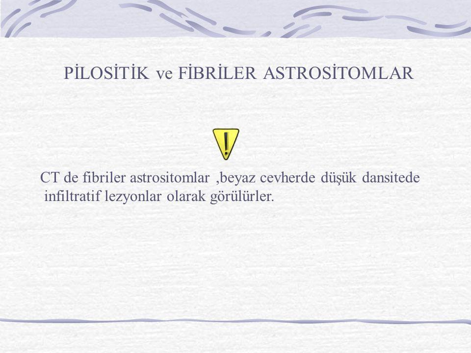 PİLOSİTİK ve FİBRİLER ASTROSİTOMLAR