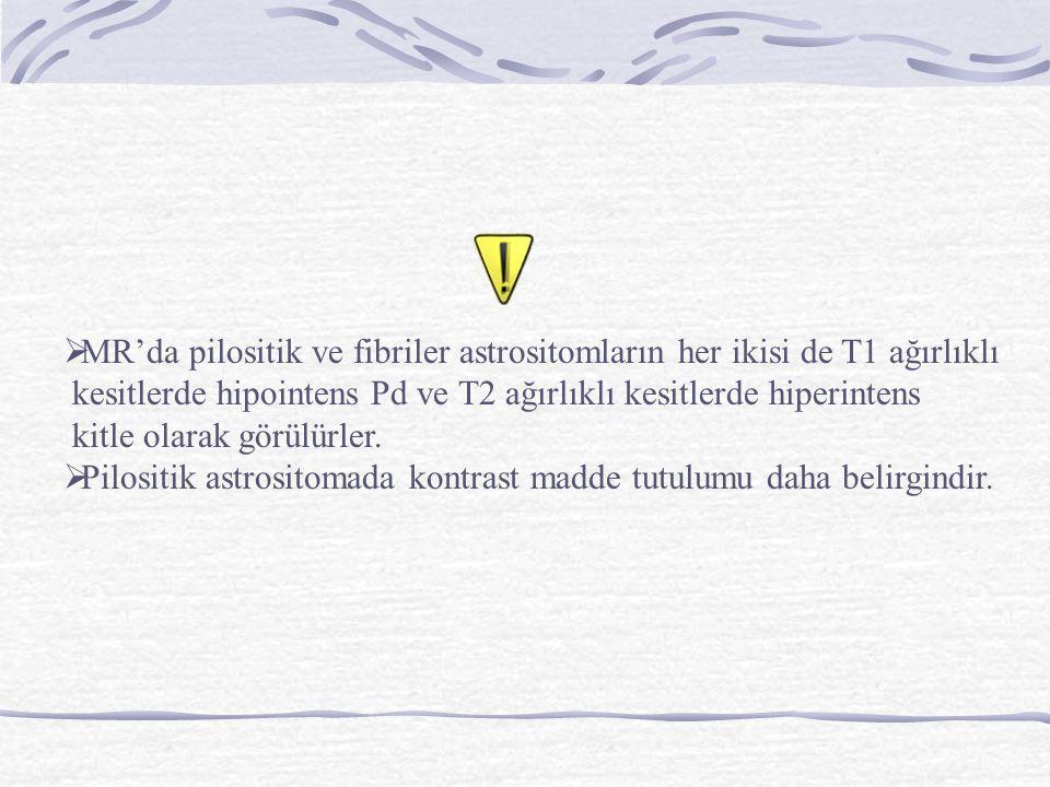 MR'da pilositik ve fibriler astrositomların her ikisi de T1 ağırlıklı