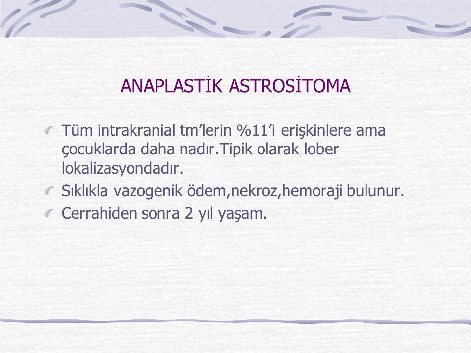ANAPLASTİK ASTROSİTOMA