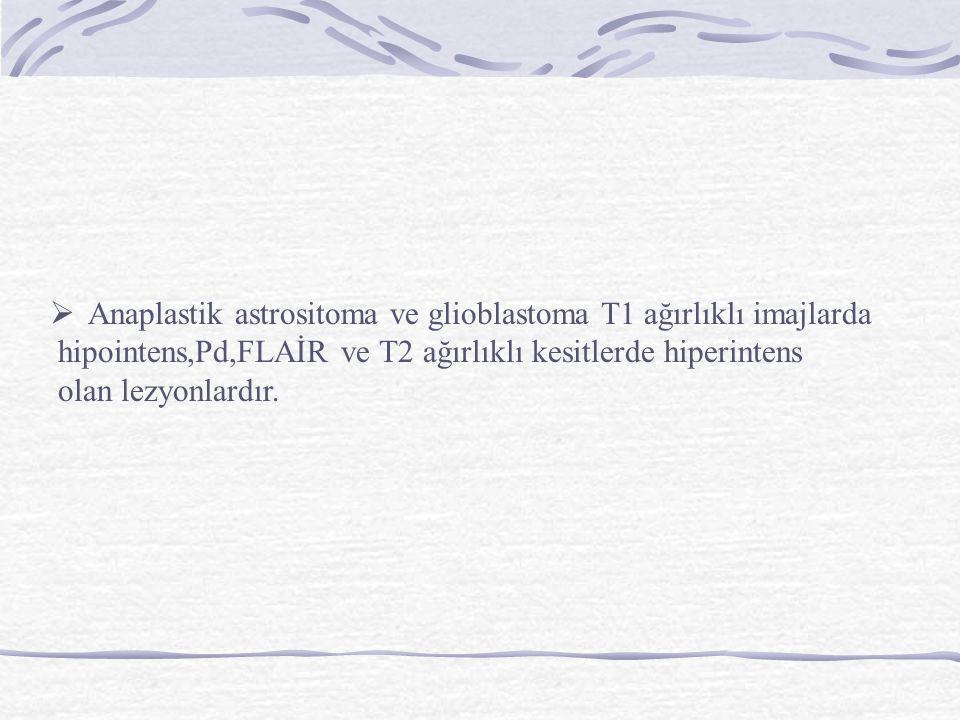Anaplastik astrositoma ve glioblastoma T1 ağırlıklı imajlarda