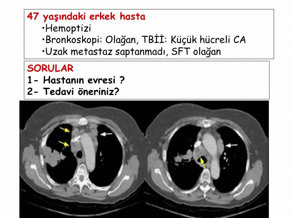47 yaşındaki erkek hasta Hemoptizi. Bronkoskopi: Olağan, TBİİ: Küçük hücreli CA. Uzak metastaz saptanmadı, SFT olağan.