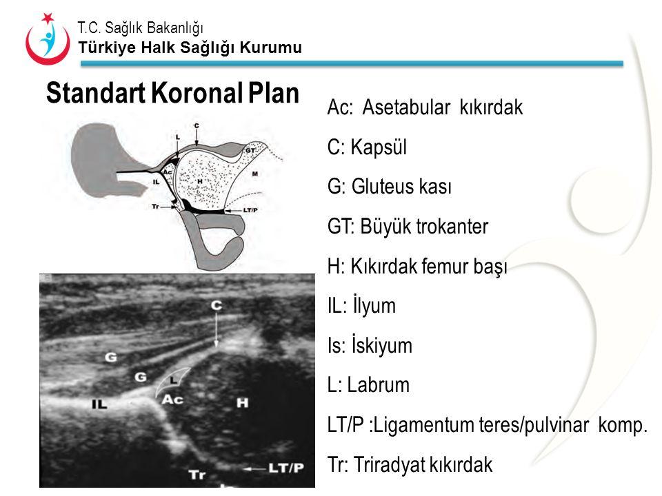 Standart Koronal Plan Ac: Asetabular kıkırdak C: Kapsül