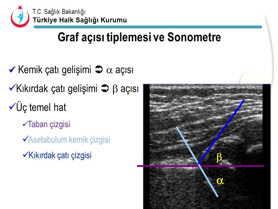 Graf açısı tiplemesi ve Sonometre