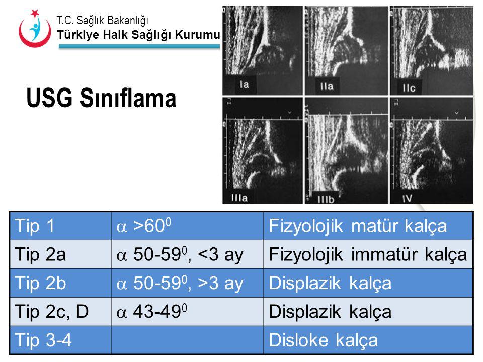 USG Sınıflama Tip 1  >600 Fizyolojik matür kalça Tip 2a
