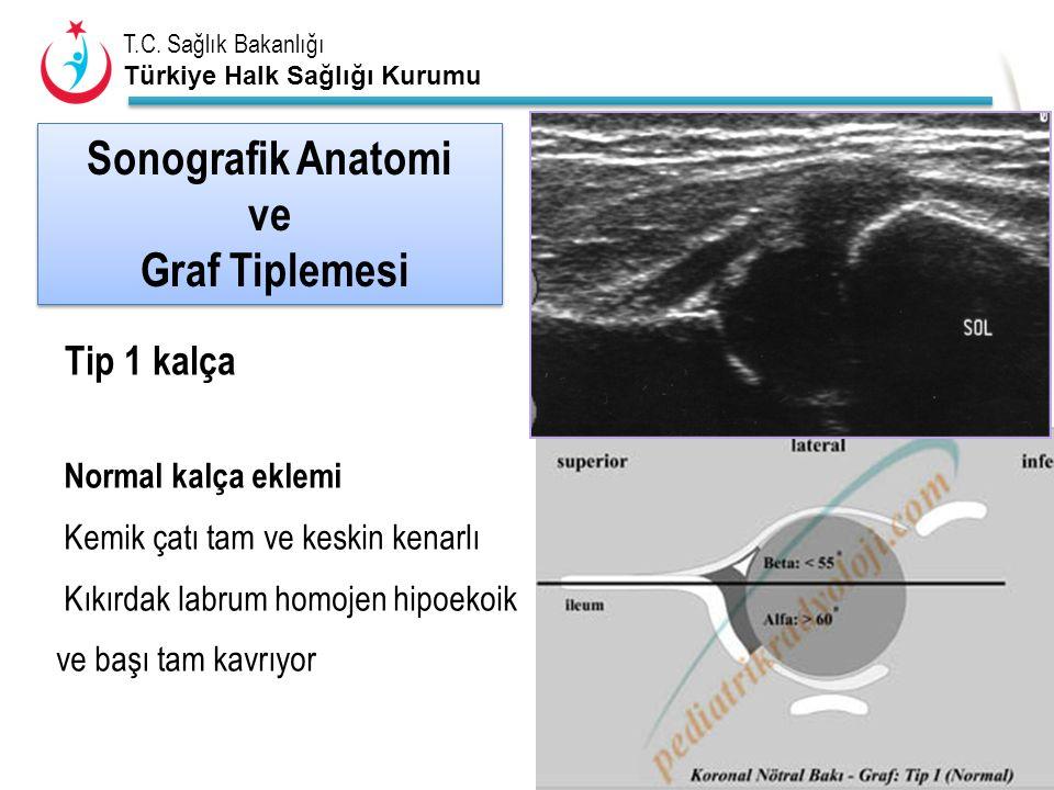 Sonografik Anatomi ve Graf Tiplemesi