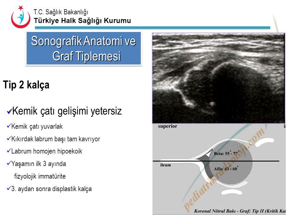 Sonografik Anatomi ve Graf Tiplemesi Tip 2 kalça