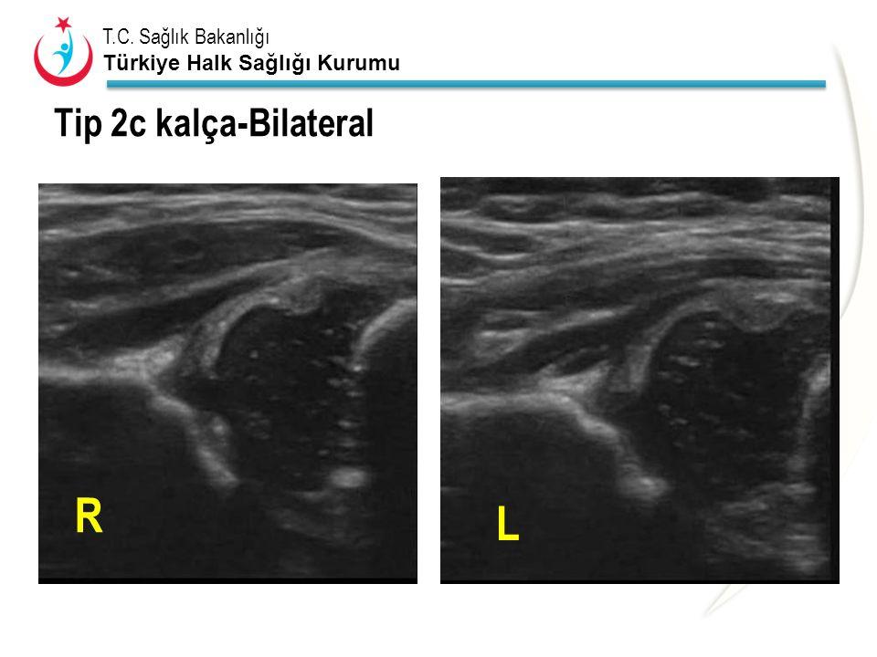 Tip 2c kalça-Bilateral 2c sag ve sol R L