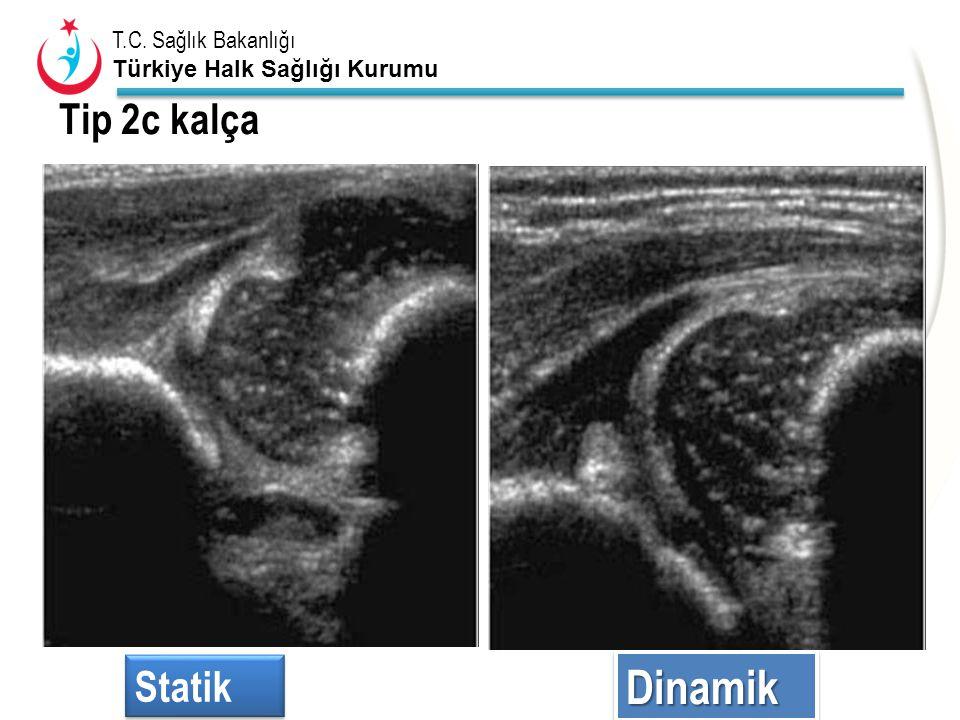 Tip 2c kalça 2c –dinamik nötral ve stress altında Statik Dinamik