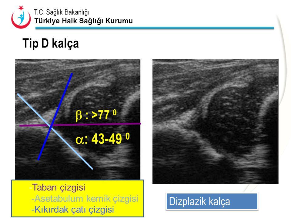 : 43-49 0 Tip D kalça  : >77 0 Dizplazik kalça -Taban çizgisi