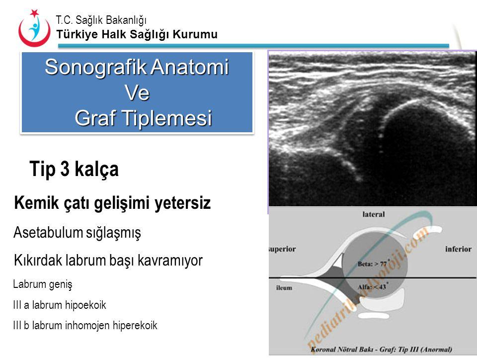 Sonografik Anatomi Ve Graf Tiplemesi Tip 3 kalça Asetabulum sığlaşmış