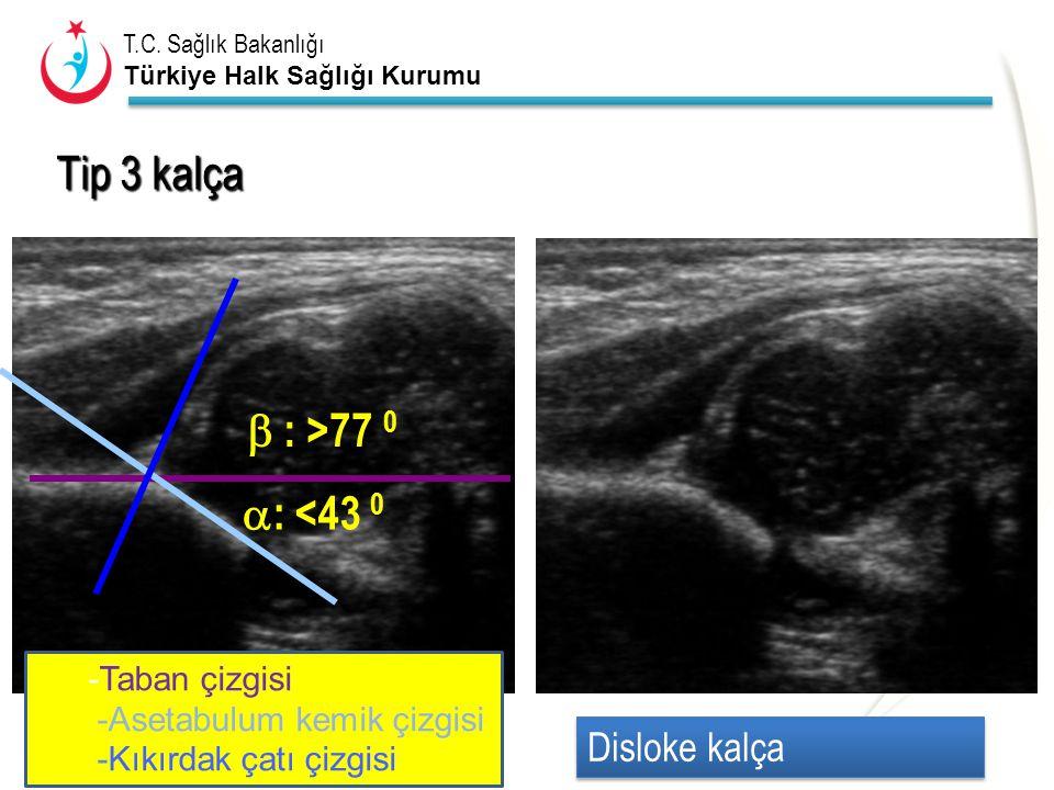 Tip 3 kalça  : >77 0 : <43 0 Disloke kalça -Taban çizgisi
