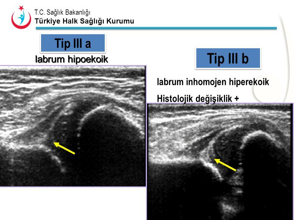 Tip III b Tip III a labrum hipoekoik labrum inhomojen hiperekoik