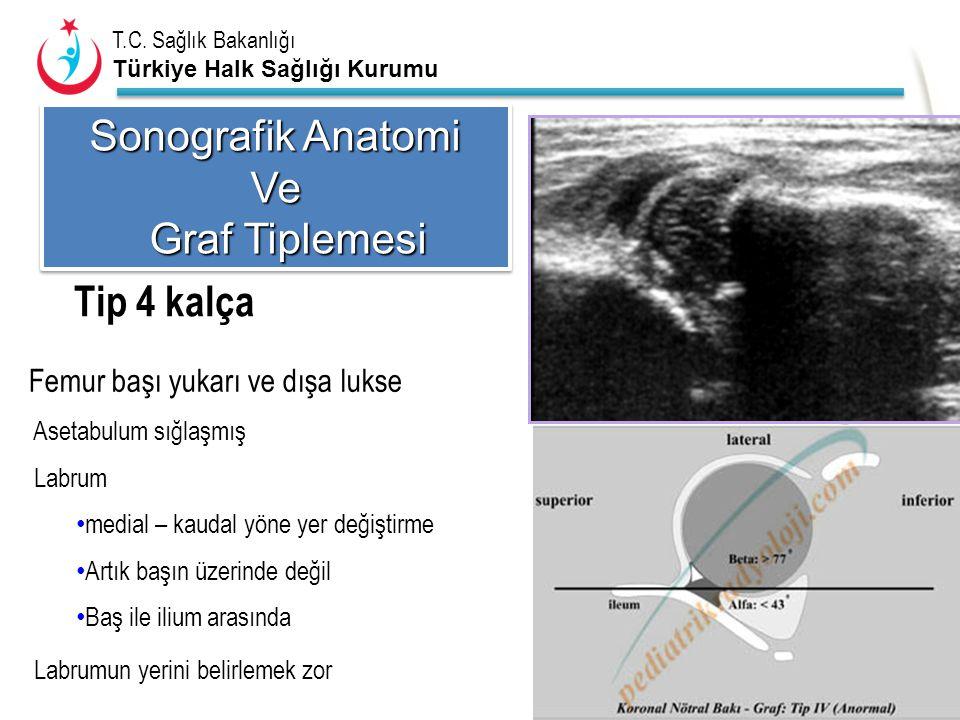Sonografik Anatomi Ve Graf Tiplemesi Tip 4 kalça