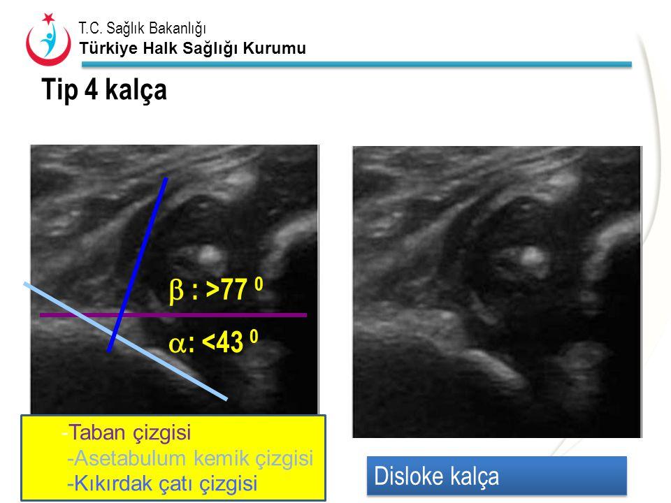 Tip 4 kalça  : >77 0 : <43 0 Disloke kalça -Taban çizgisi