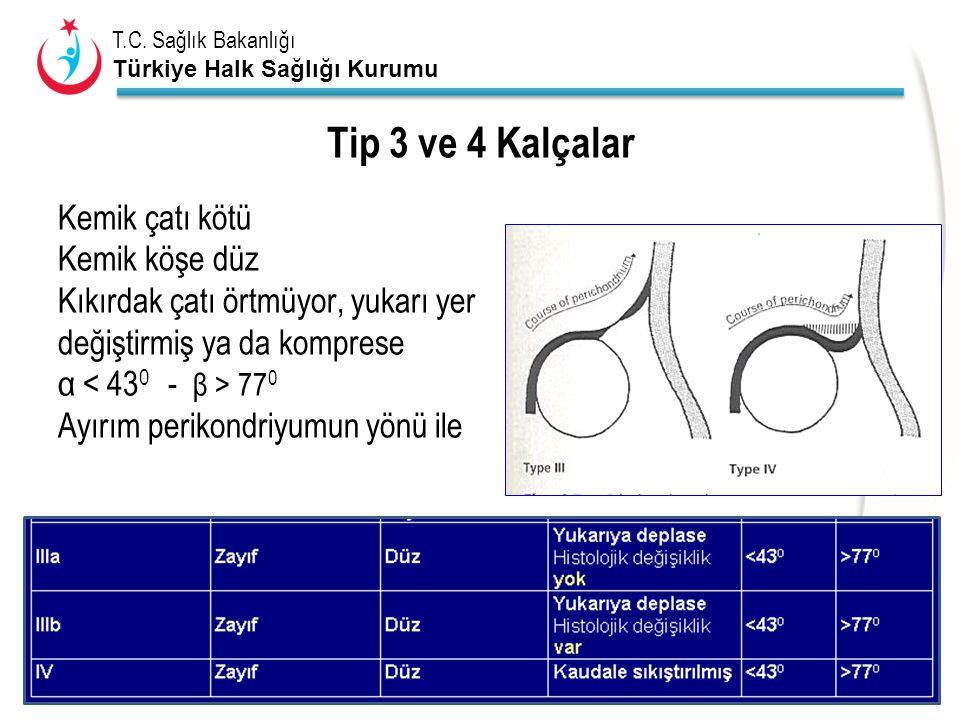 Tip 3 ve 4 Kalçalar