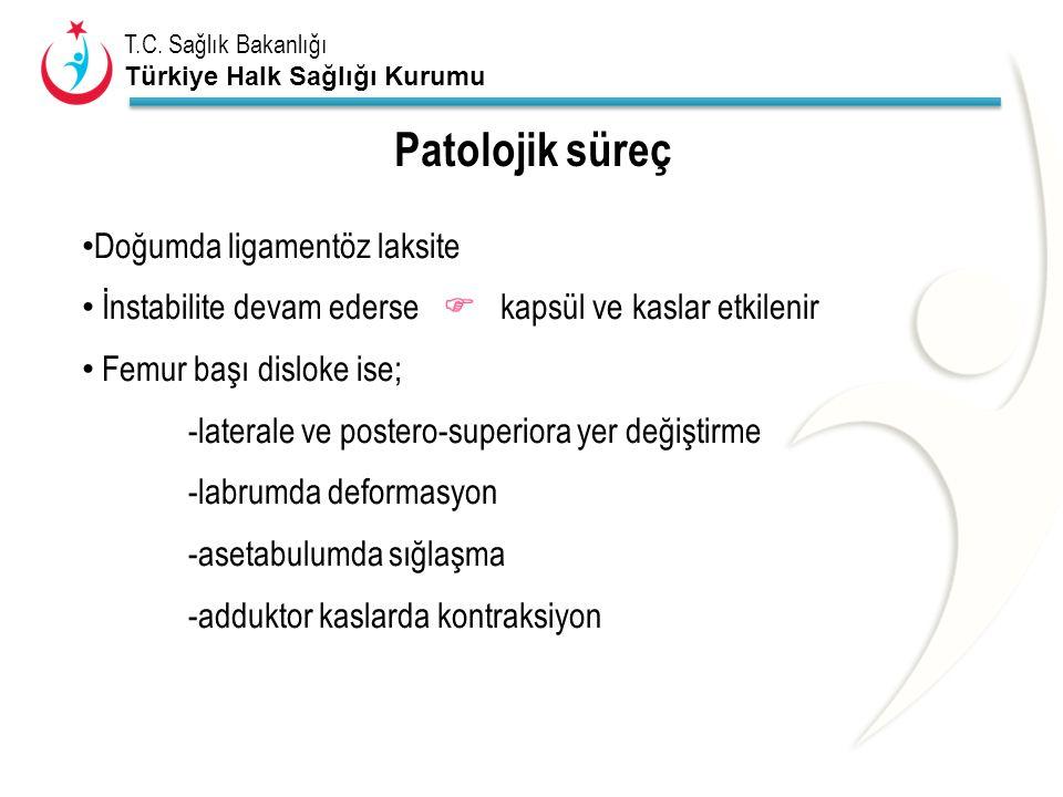 Patolojik süreç Doğumda ligamentöz laksite