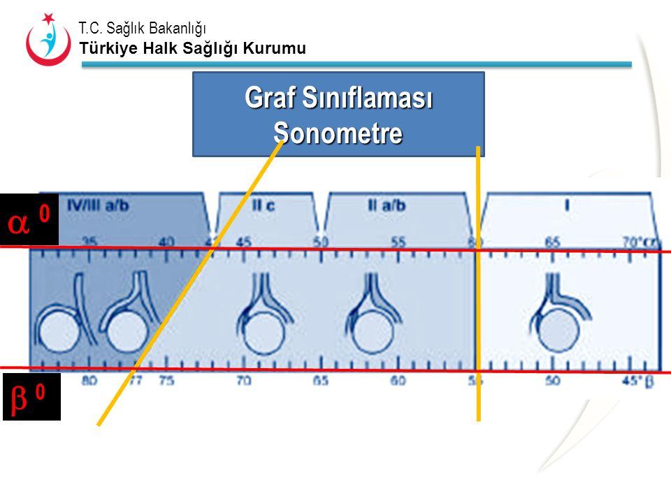 Graf Sınıflaması Sonometre  0  0