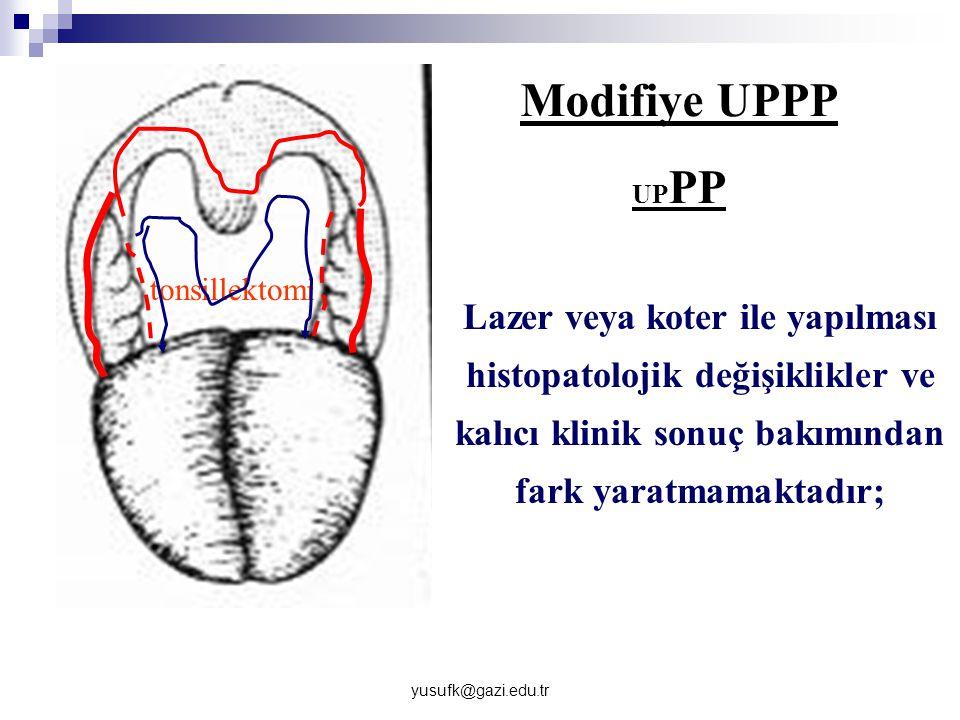 Modifiye UPPP UPPP. tonsillektomi.
