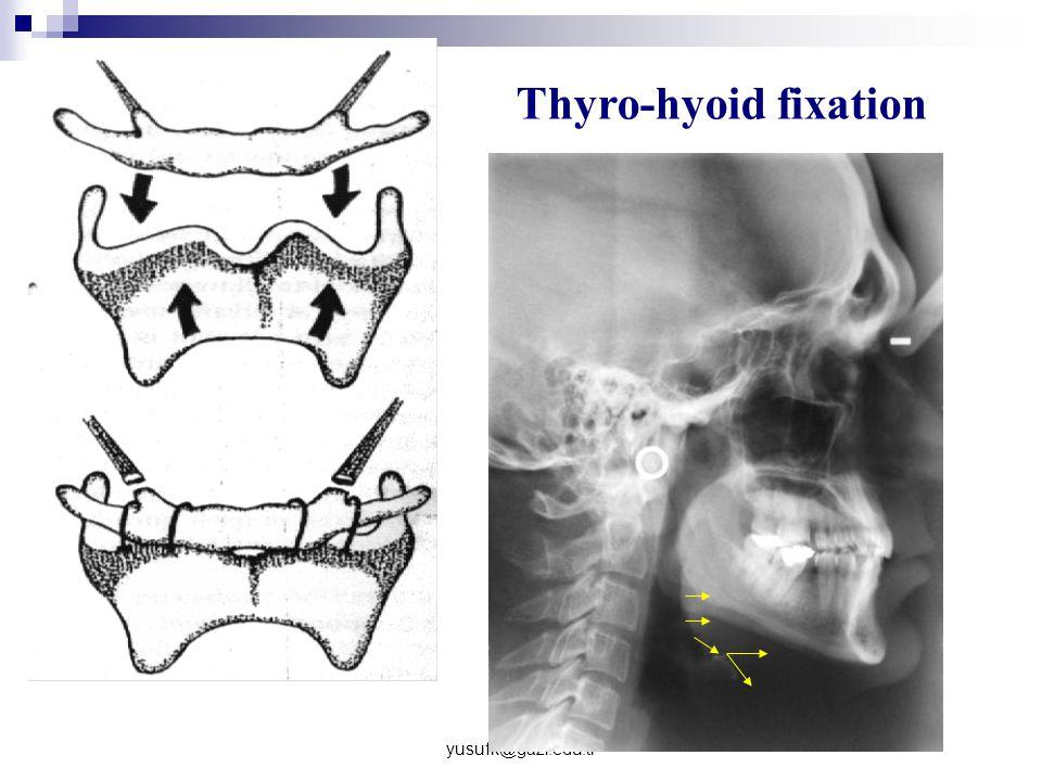 Thyro-hyoid fixation yusufk@gazi.edu.tr