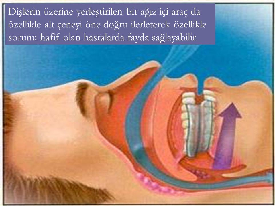 Dişlerin üzerine yerleştirilen bir ağız içi araç da özellikle alt çeneyi öne doğru ilerleterek özellikle sorunu hafif olan hastalarda fayda sağlayabilir