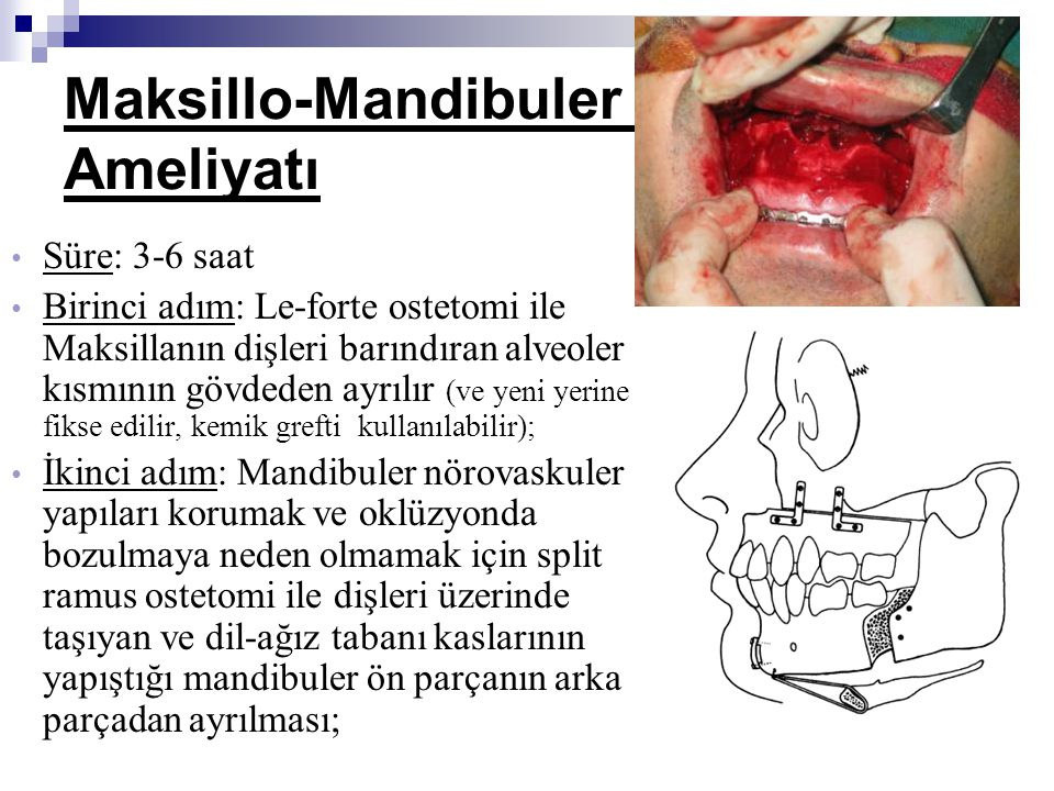 Maksillo-Mandibuler İlerletme Ameliyatı