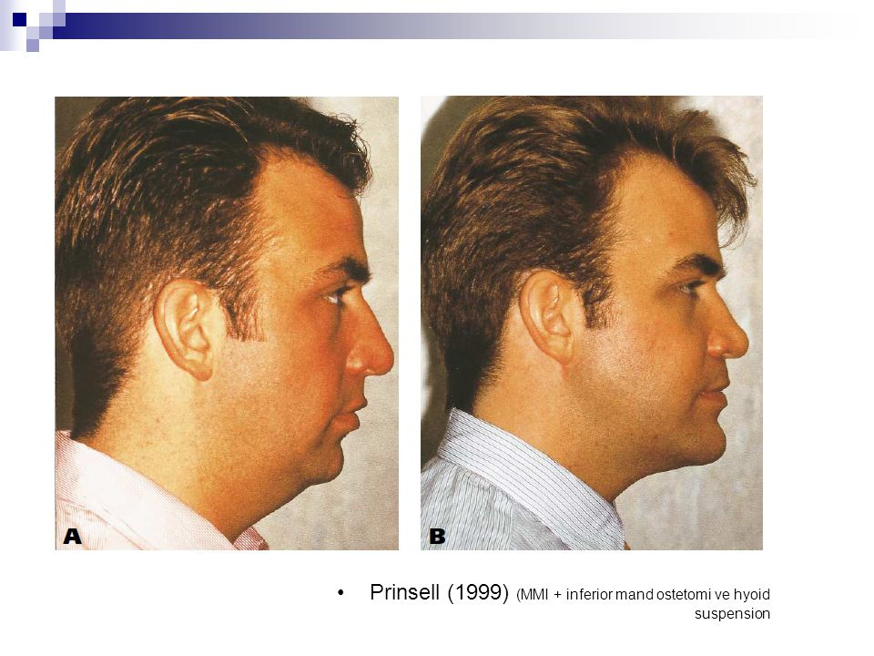 Prinsell (1999) (MMI + inferior mand ostetomi ve hyoid suspension