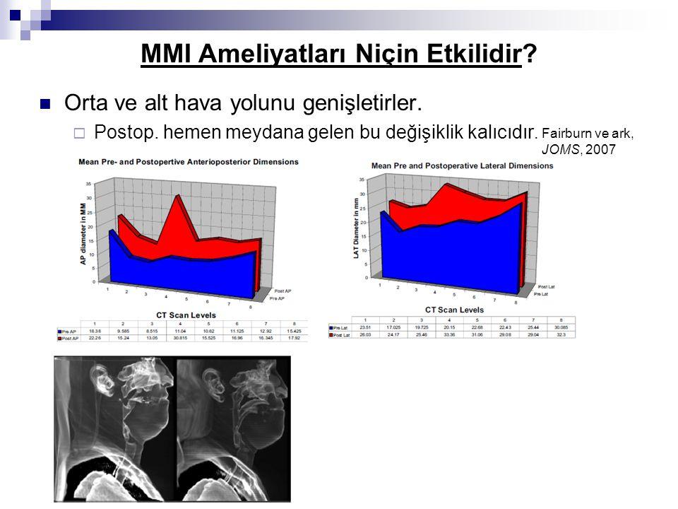MMI Ameliyatları Niçin Etkilidir