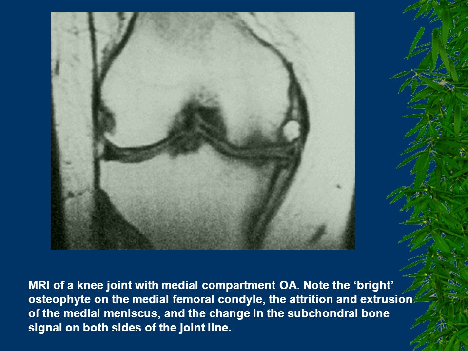 MRI of a knee joint with medial compartment OA