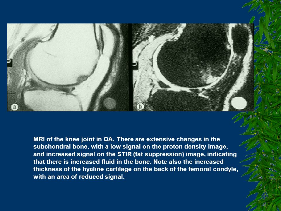 MRI of the knee joint in OA