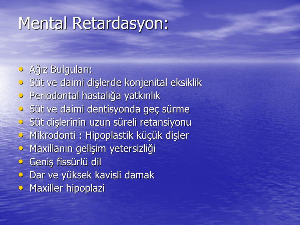 Mental Retardasyon: Ağız Bulguları: