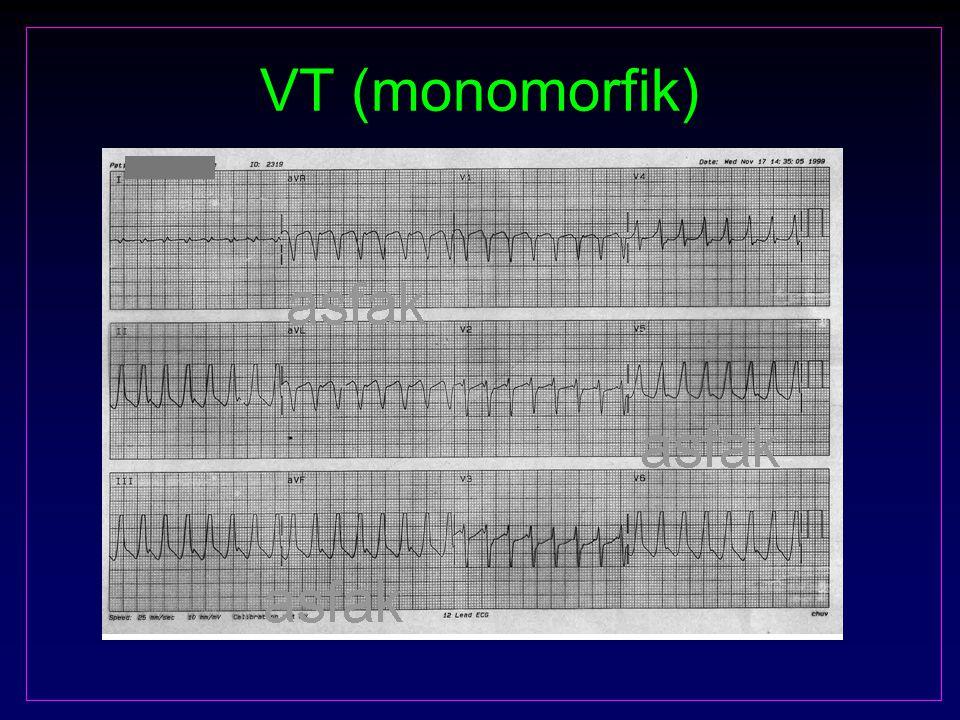 VT (monomorfik)