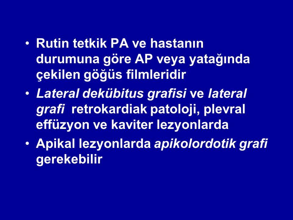 Rutin tetkik PA ve hastanın durumuna göre AP veya yatağında çekilen göğüs filmleridir