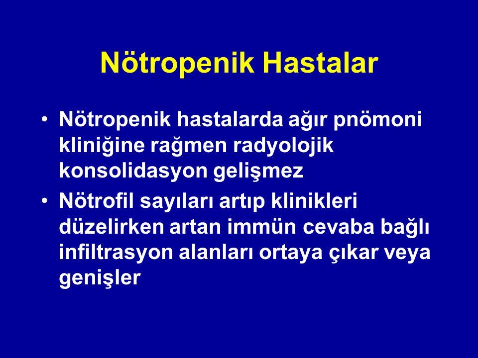 Nötropenik Hastalar Nötropenik hastalarda ağır pnömoni kliniğine rağmen radyolojik konsolidasyon gelişmez.